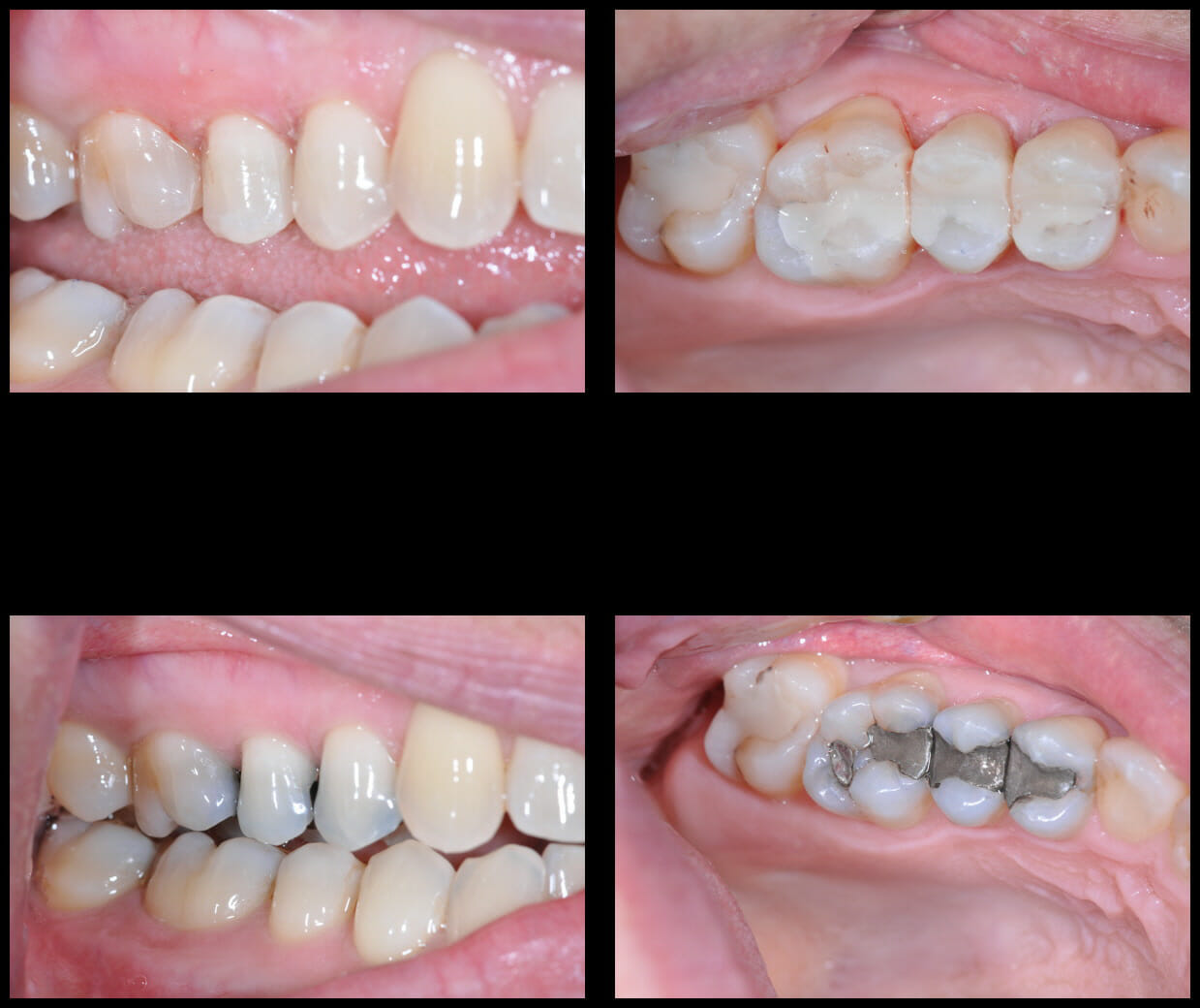 Dental fillings before and after